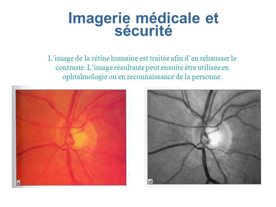 Imagerie médicale et sécurité