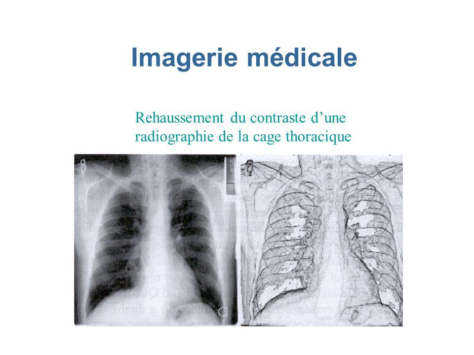 Imagerie médicale Rehaussement du contraste d'une radiographie de la cage thoracique