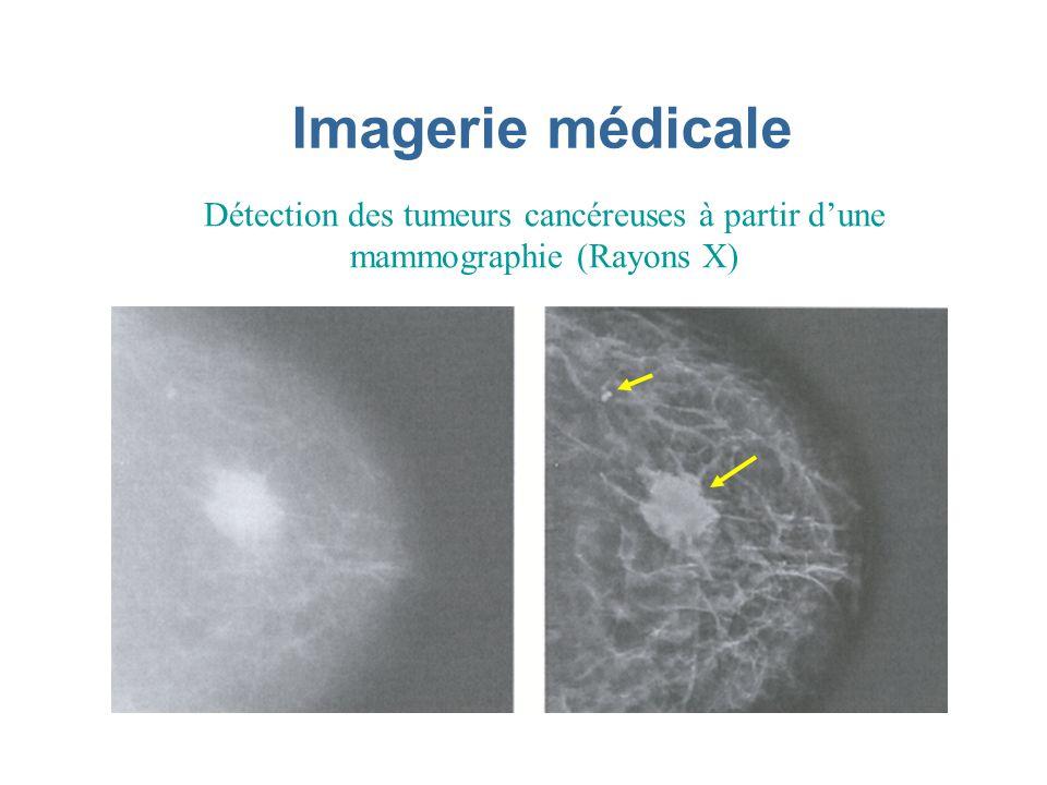 Imagerie médicale Détection des tumeurs cancéreuses à partir d'une mammographie (Rayons X)