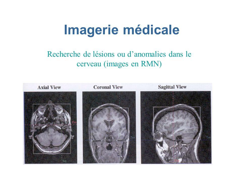 Recherche de lésions ou d'anomalies dans le cerveau (images en RMN)