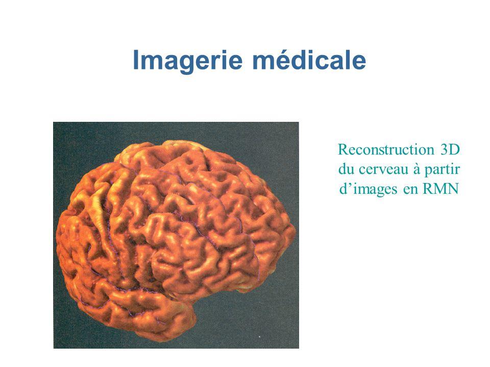 Reconstruction 3D du cerveau à partir d'images en RMN