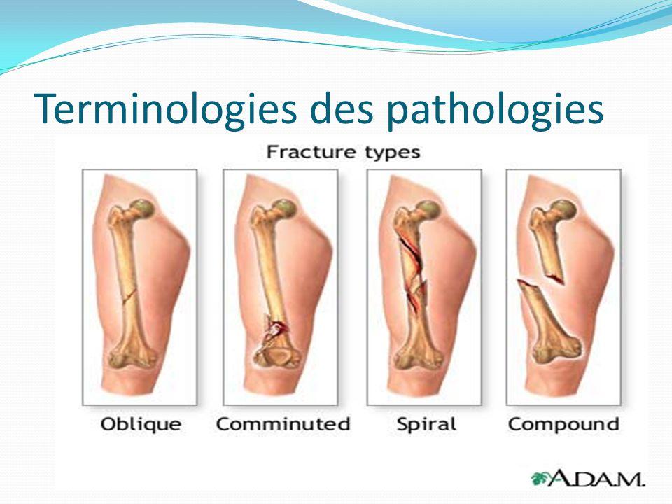 Terminologies des pathologies