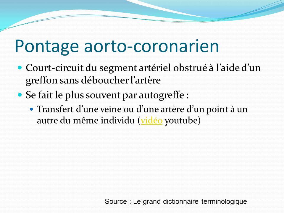 Pontage aorto-coronarien