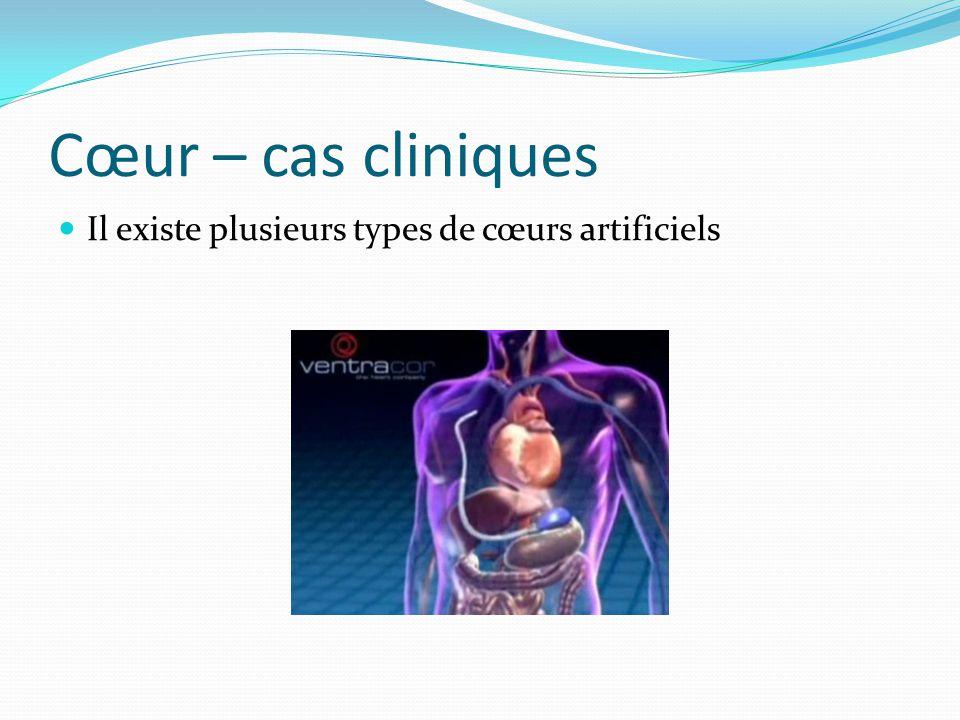 Cœur – cas cliniques Il existe plusieurs types de cœurs artificiels