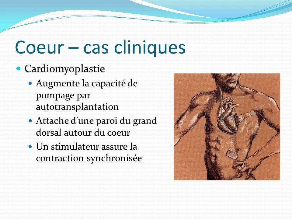 Coeur – cas cliniques Cardiomyoplastie