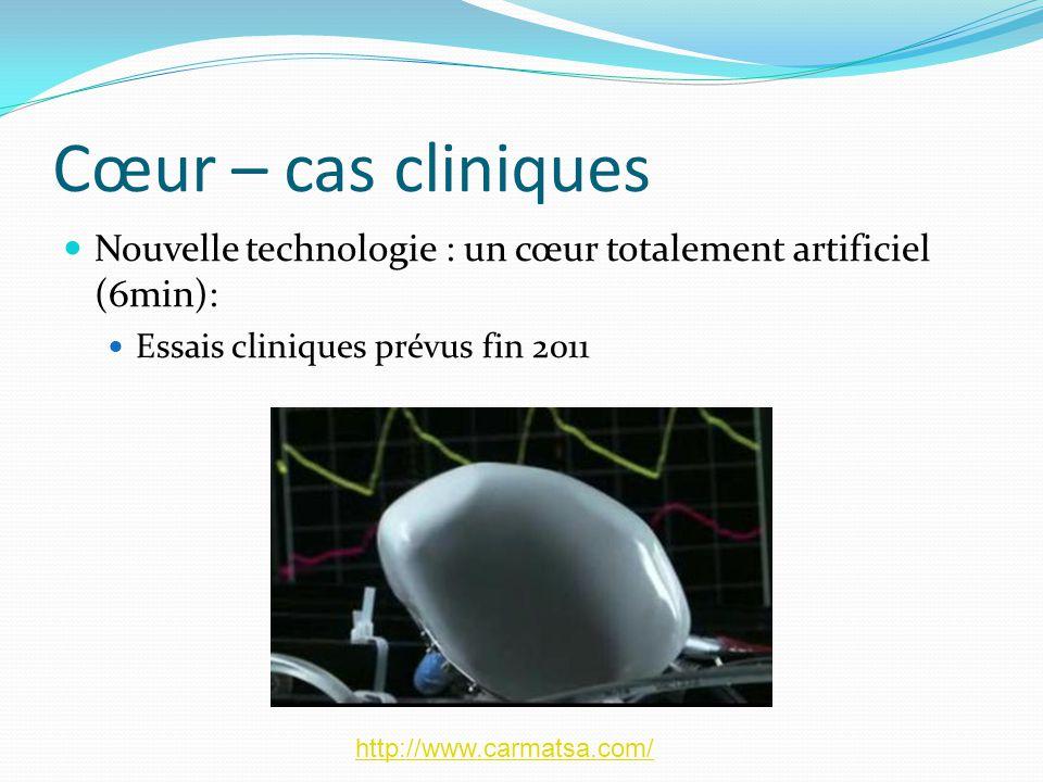 Cœur – cas cliniques Nouvelle technologie : un cœur totalement artificiel (6min): Essais cliniques prévus fin 2011.