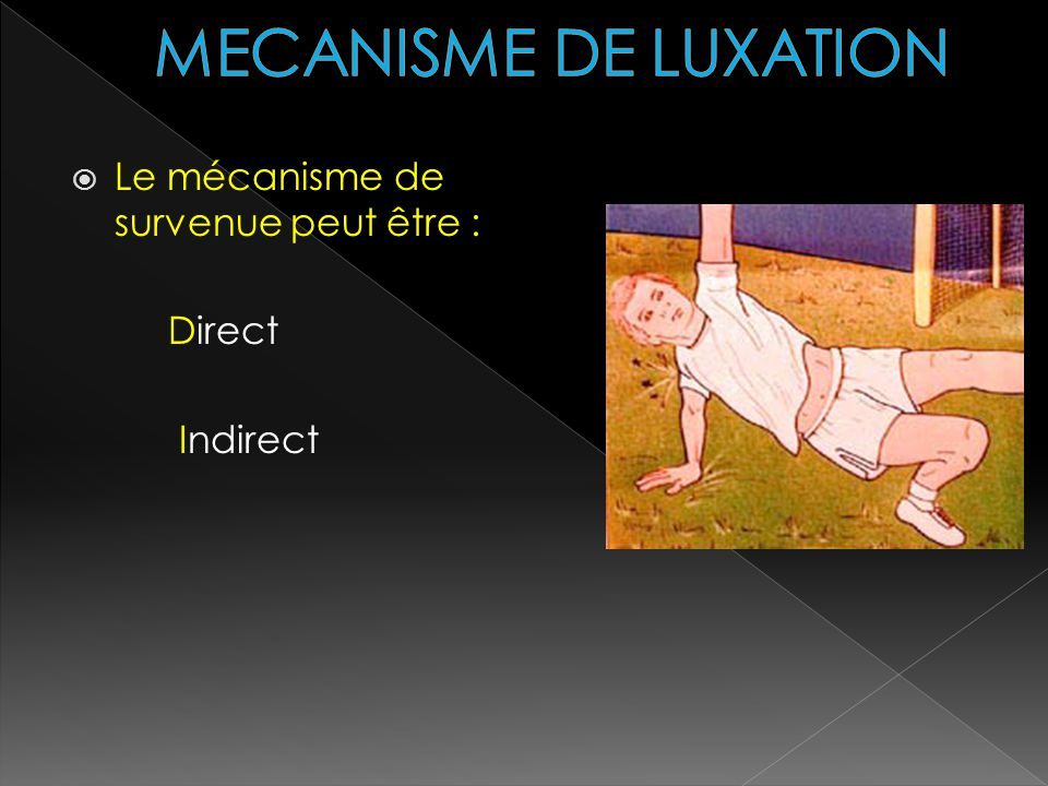 MECANISME DE LUXATION Le mécanisme de survenue peut être : Direct