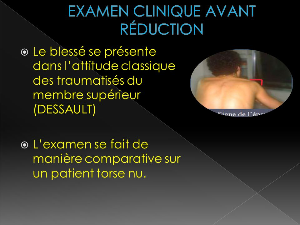 EXAMEN CLINIQUE AVANT RÉDUCTION