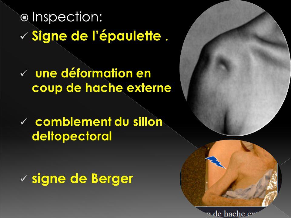 Inspection: Signe de l'épaulette . signe de Berger