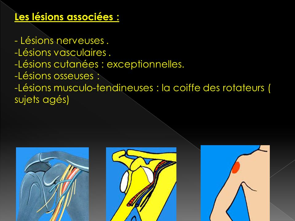 Les lésions associées :