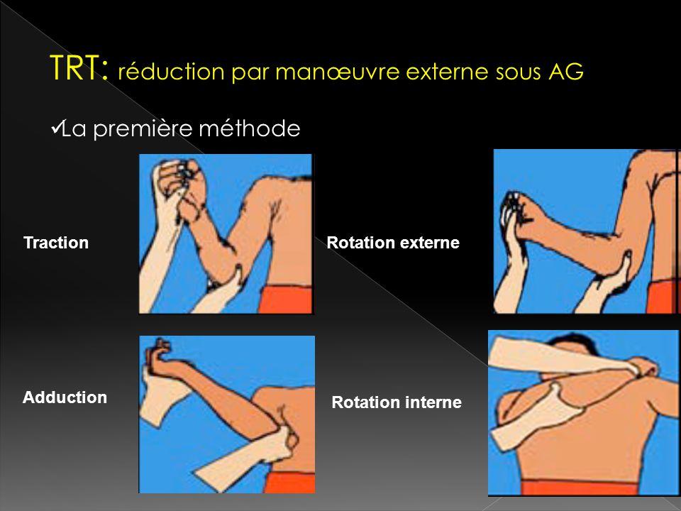 TRT: réduction par manœuvre externe sous AG