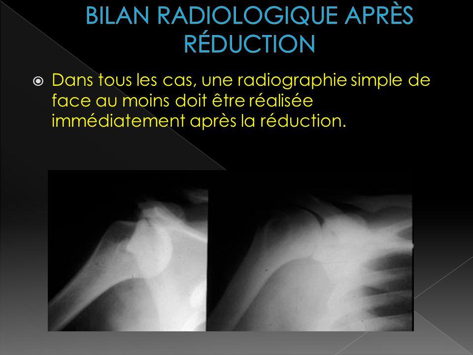 BILAN RADIOLOGIQUE APRÈS RÉDUCTION