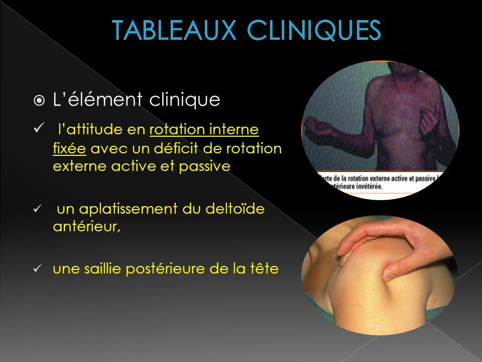 TABLEAUX CLINIQUES L'élément clinique. l'attitude en rotation interne fixée avec un déficit de rotation externe active et passive.