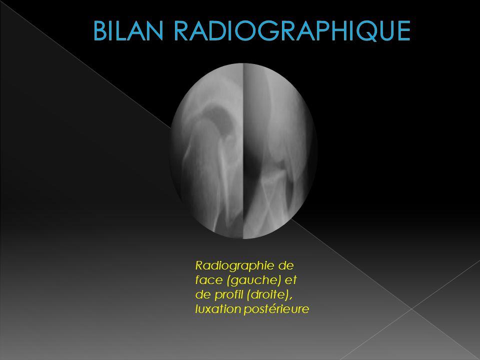 BILAN RADIOGRAPHIQUE Radiographie de face (gauche) et de profil (droite), luxation postérieure