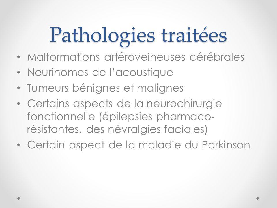 Pathologies traitées Malformations artéroveineuses cérébrales