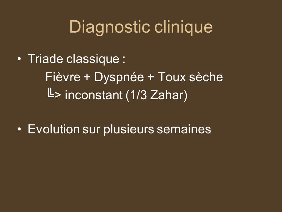 Diagnostic clinique Triade classique : Fièvre + Dyspnée + Toux sèche