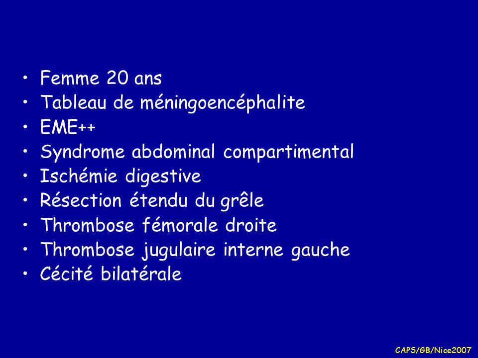 Tableau de méningoencéphalite EME++ Syndrome abdominal compartimental
