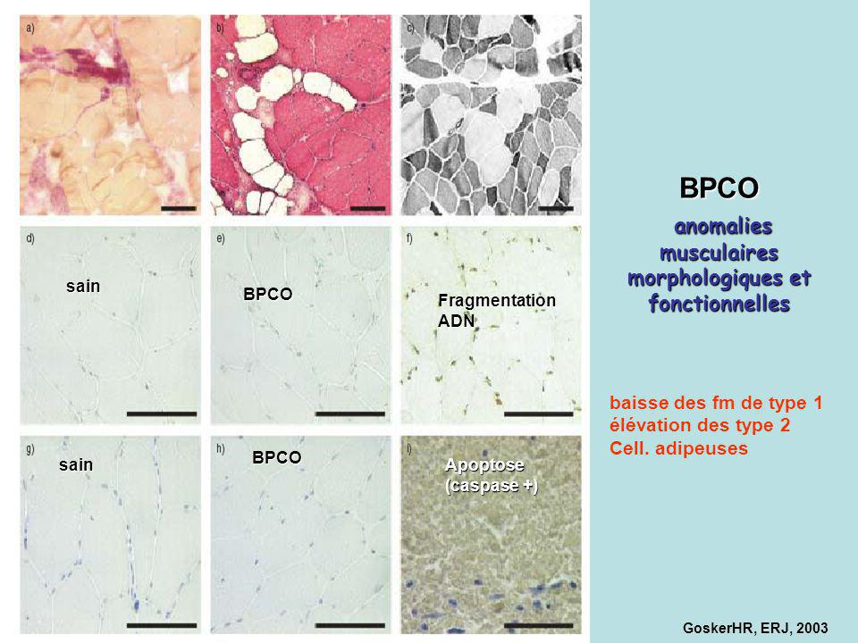 BPCO anomalies musculaires morphologiques et fonctionnelles