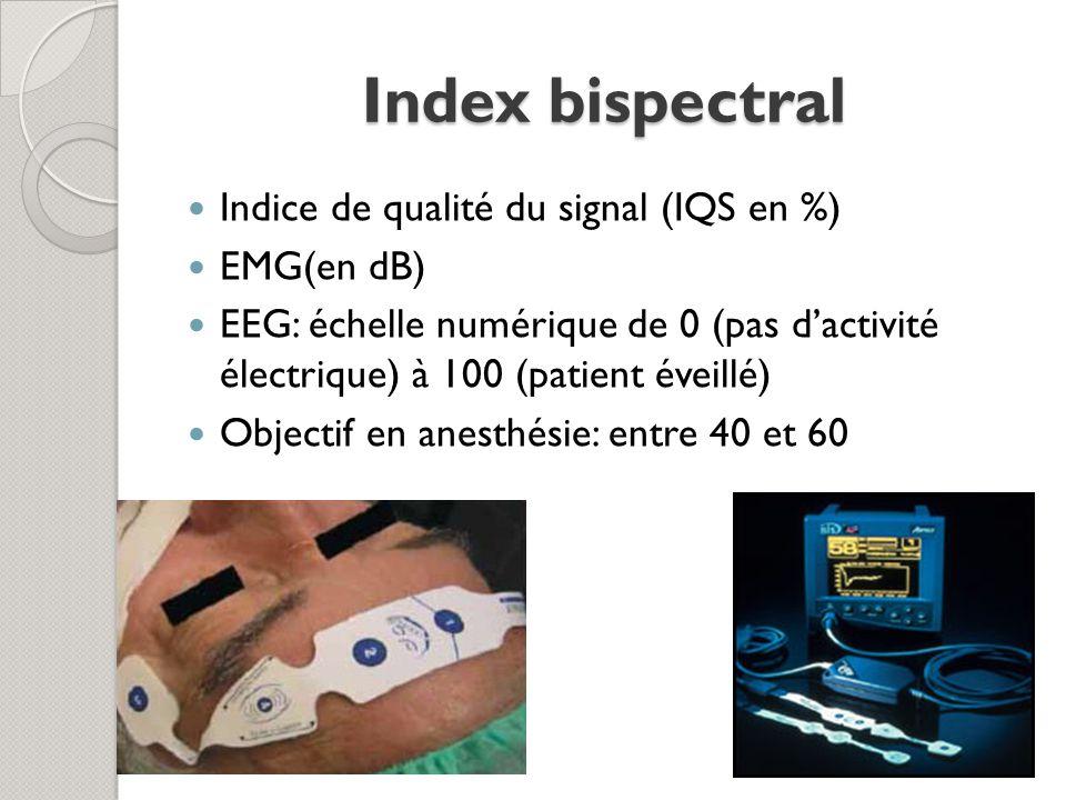Index bispectral Indice de qualité du signal (IQS en %) EMG(en dB)