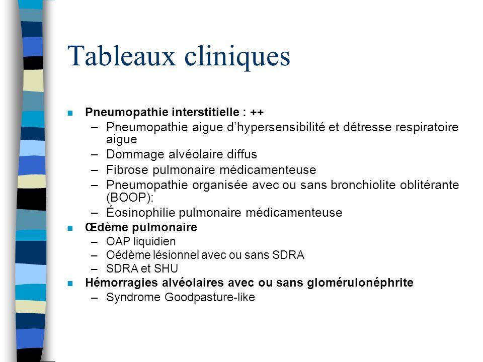 Tableaux cliniques Pneumopathie interstitielle : ++ Pneumopathie aigue d'hypersensibilité et détresse respiratoire aigue.