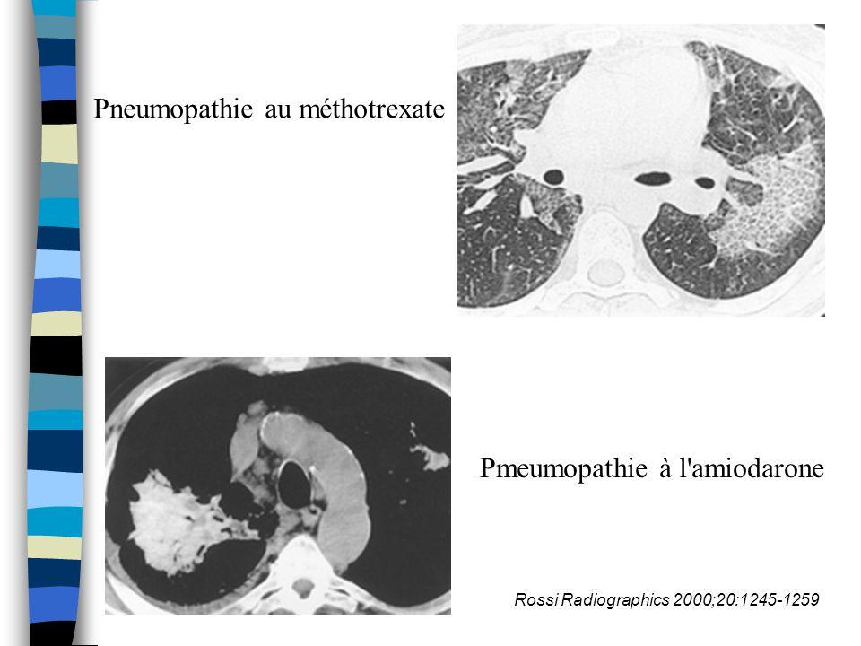 Pneumopathie au méthotrexate