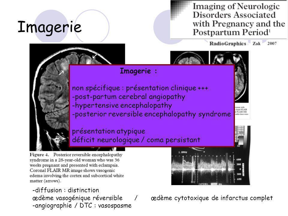 Imagerie Imagerie : non spécifique : présentation clinique +++