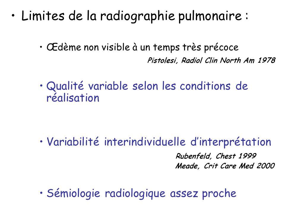 Limites de la radiographie pulmonaire :