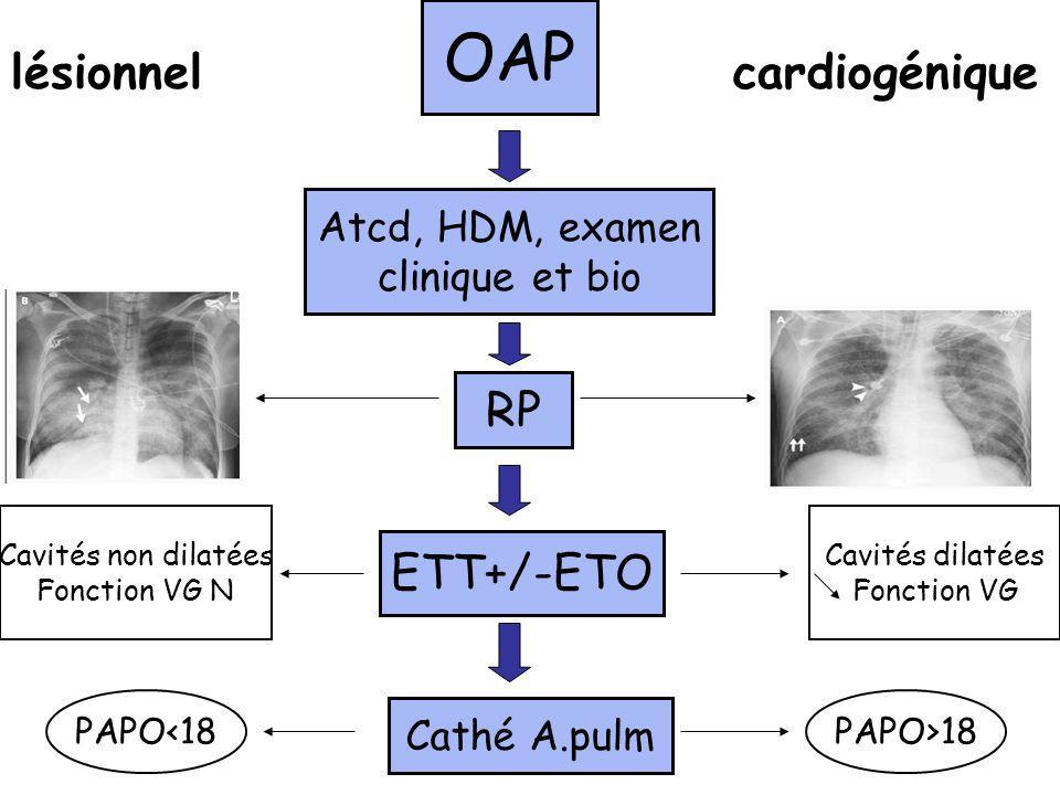 OAP lésionnel cardiogénique RP ETT+/-ETO Atcd, HDM, examen