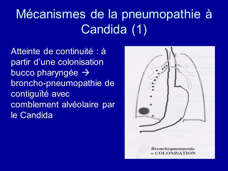 Mécanismes de la pneumopathie à Candida (1)