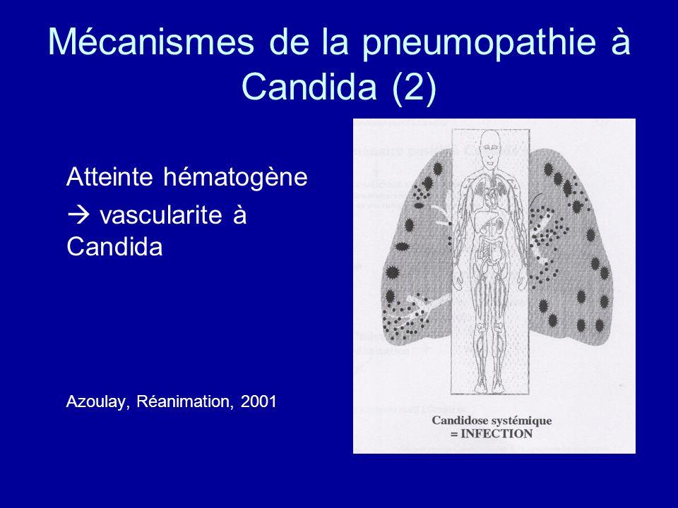Mécanismes de la pneumopathie à Candida (2)