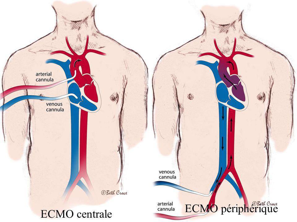 ECMO périphérique ECMO centrale