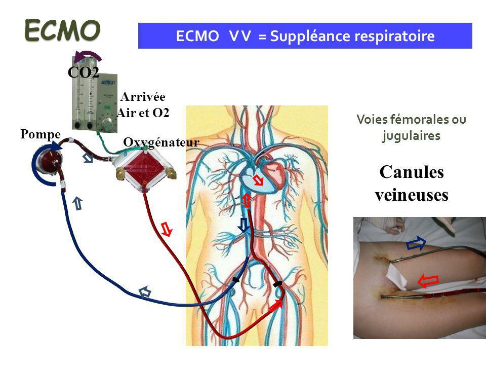 ECMO V V = Suppléance respiratoire Voies fémorales ou jugulaires