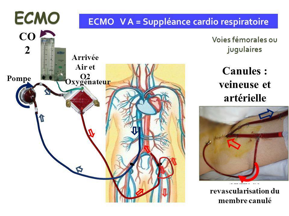 ECMO CO2 Canules : veineuse et artérielle