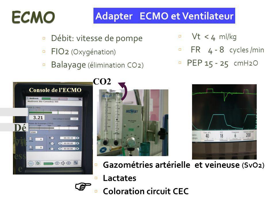 Adapter ECMO et Ventilateur