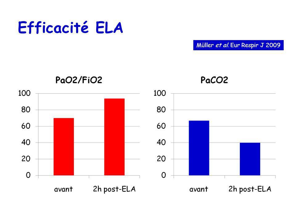 Müller et al. Eur Respir J 2009