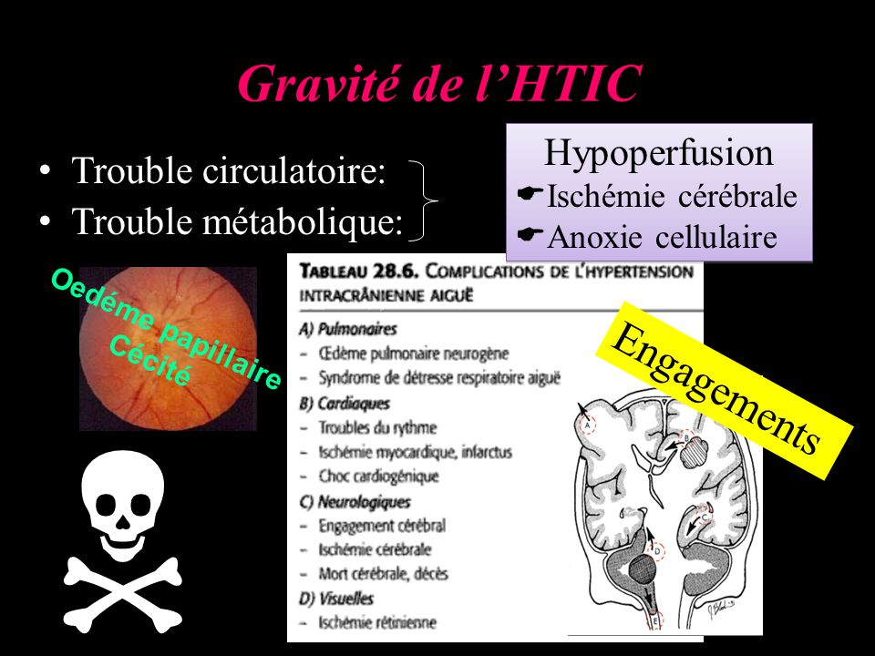  Gravité de l'HTIC Engagements Hypoperfusion Trouble circulatoire: