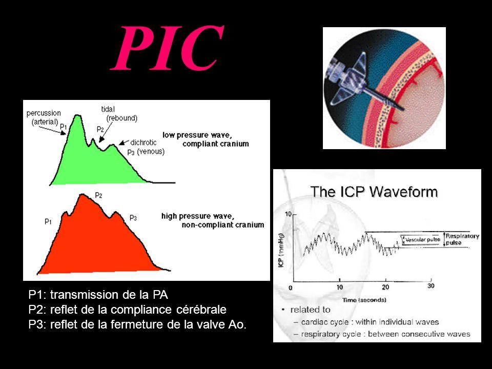 PIC P1: transmission de la PA P2: reflet de la compliance cérébrale