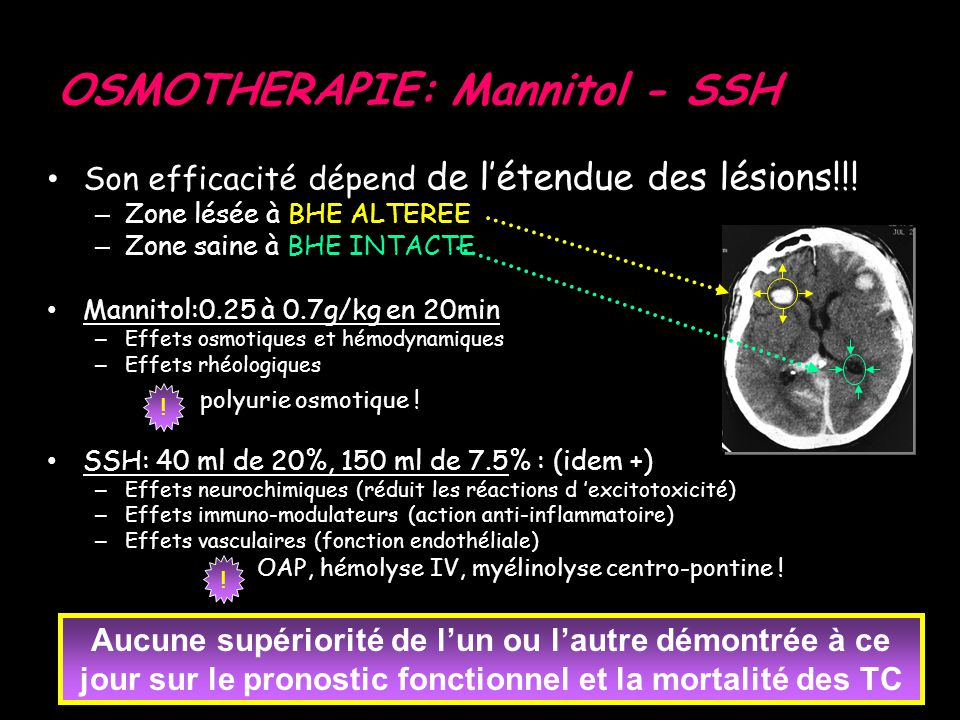 OSMOTHERAPIE: Mannitol - SSH