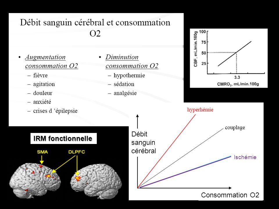 Débit sanguin cérébral IRM fonctionnelle Ischémie Consommation O2