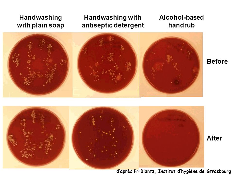 Handwashing with plain soap Handwashing with antiseptic detergent