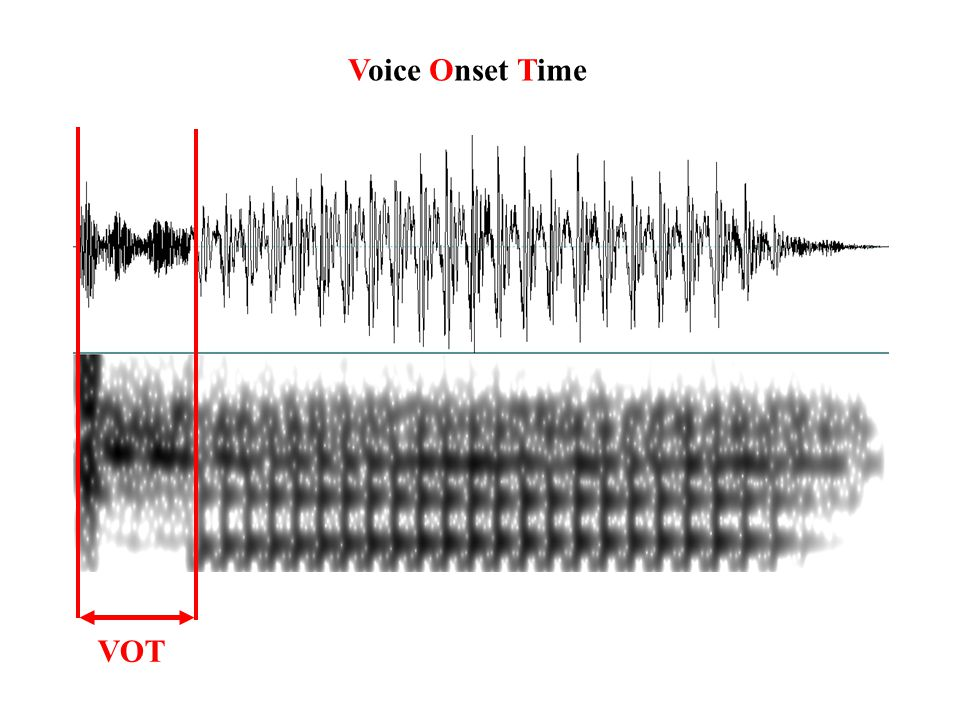 Voice Onset Time VOT