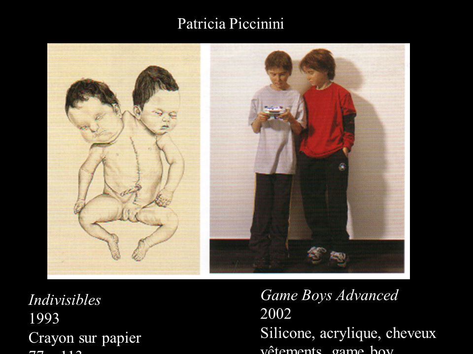 Patricia Piccinini Game Boys Advanced. 2002. Silicone, acrylique, cheveux. vêtements, game boy. Indivisibles.