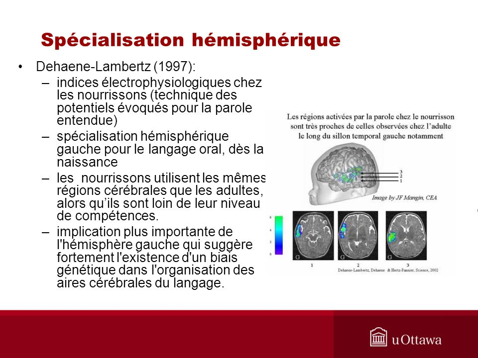 Spécialisation hémisphérique