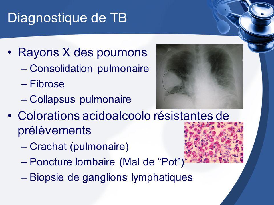 Diagnostique de TB Rayons X des poumons