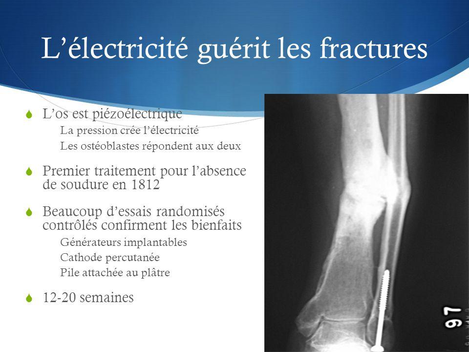 L'électricité guérit les fractures