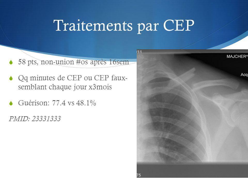 Traitements par CEP 58 pts, non-union #os après 16sem