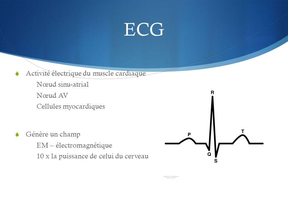 ECG Activité électrique du muscle cardiaque Nœud sinu-atrial Nœud AV
