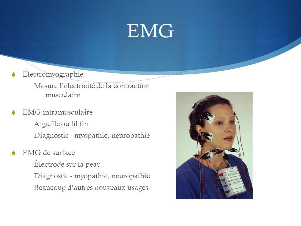 EMG Électromyographie