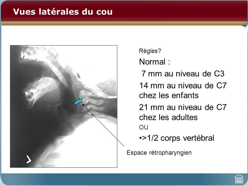 14 mm au niveau de C7 chez les enfants