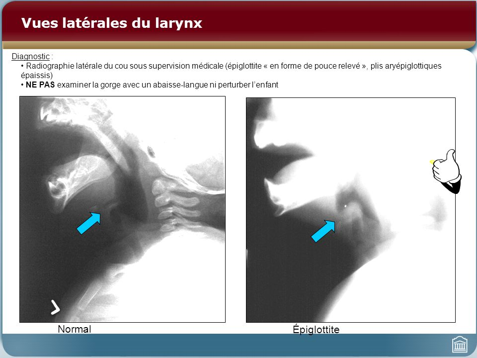 Vues latérales du larynx